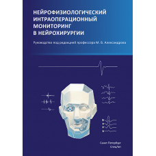Нейрофизиологический интраоперационной мониторинг в нейрохирургии